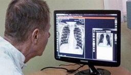 """أخصائي روسي يؤكّد وجود 5 تمارين لحماية الجهاز التنفّسي من """"كورونا"""""""