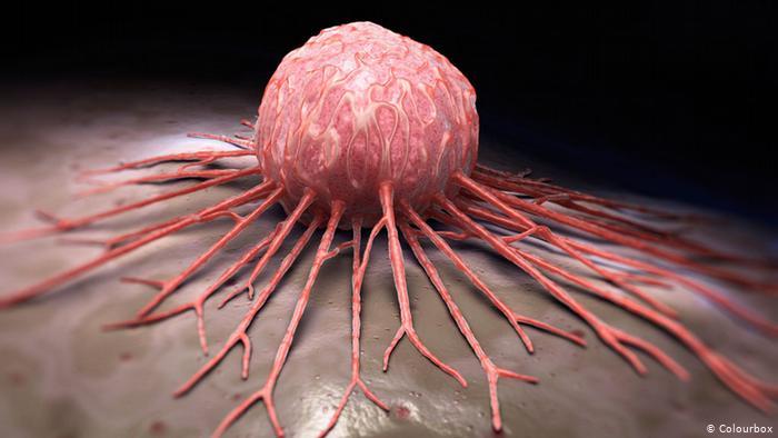 العثور على طريقة للكشف عن السرطان من خلال المظهر الخارجي